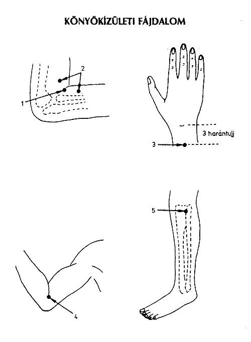 nem adja át a könyökízület fájdalmát csípőízületek artrózisa 1 fok