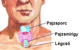 pajzsmirigy betegség)