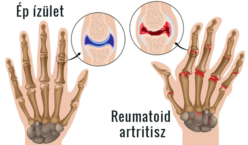 rheumatoid arthritis kéz tünetei