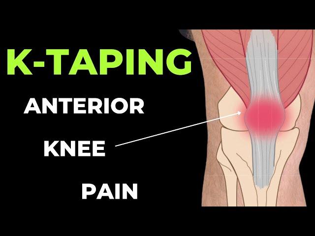 A térdizület ortopédiai betegségei és műtéti kezelésük | szeplaklovasudvar.hu
