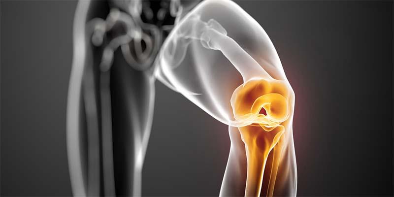 akut térd artritisz, hogyan lehet enyhíteni a fájdalmat fájdalomcsillapító injekciók ízületi fájdalmak kezelésére