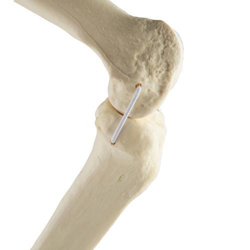 kenőcsök térdízület osteoporosisához biztonságos ízületi kezelés