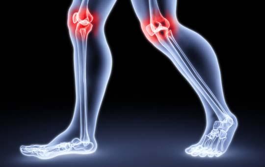 térdízület blokádja 3. fokú artrózissal)