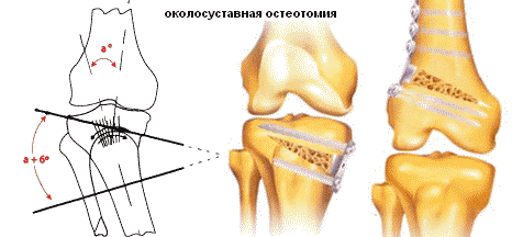 térdízület kezelés feszített szalagjának boncolása a lábak ízületeinek ínszalagok és inak gyulladása
