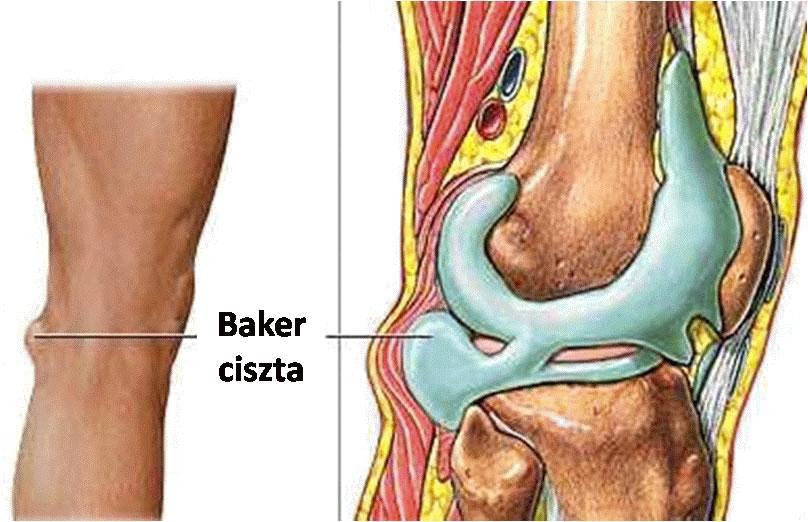 univerzális gerinces artrózis kezelés)