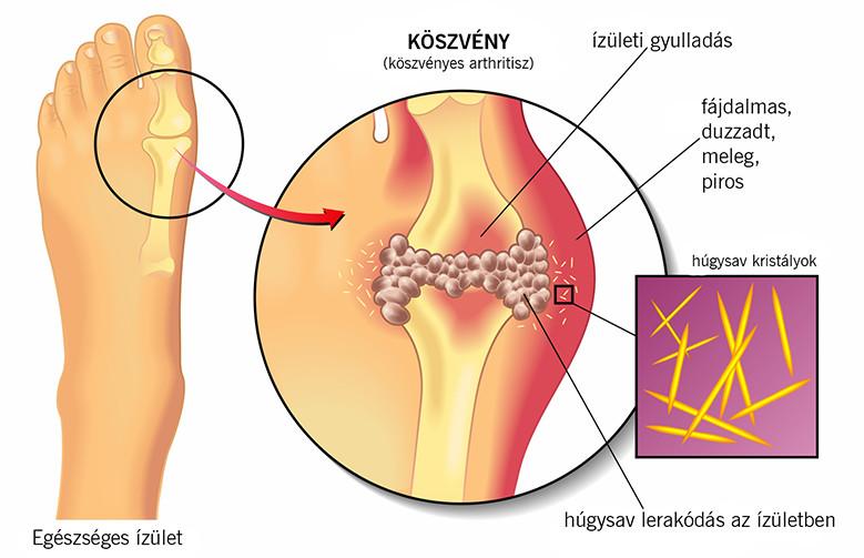 víz- és ízületi betegségek metacarpophalangealis arthrosis