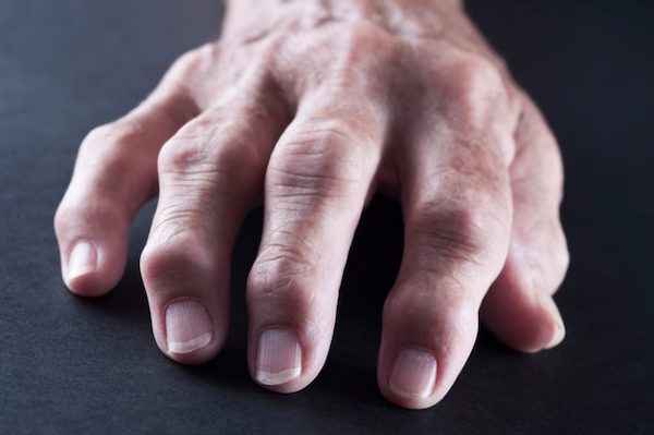 ízületi fájdalom korszerű kezelése)
