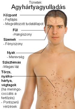 ízületi fájdalom, meningitis