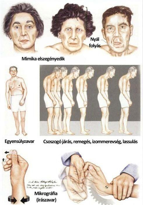 ízületi gyulladás ízületi gyulladásos gyulladás kezelése