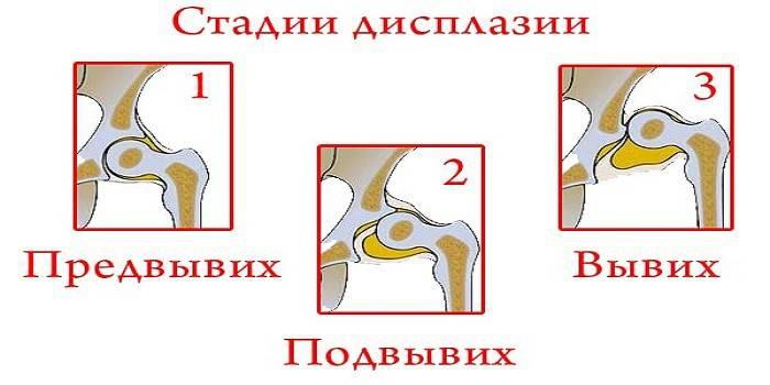 új módszer az artrózis kezelésében a készítmény ára arthra kondroitin