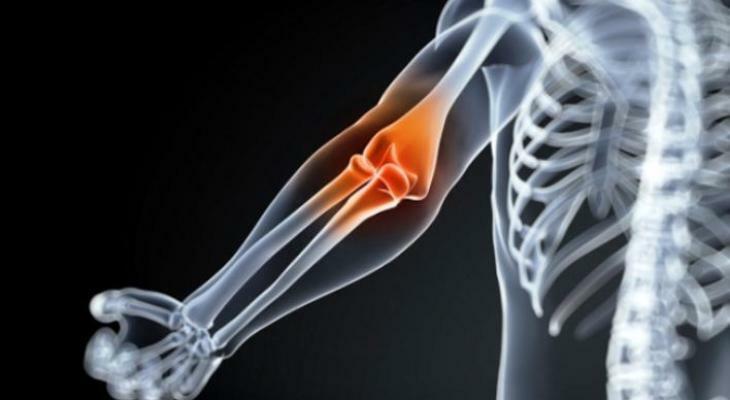 ízületi fájdalom és testépítés ízületi gyulladásos fertőzések