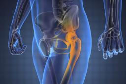 mit kell csinálni a csípőízület fájdalma miatt)