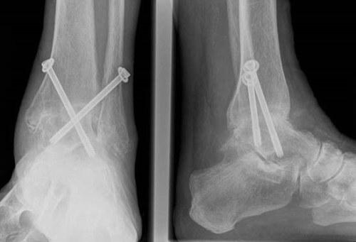 a bokaízület deformáló osteoarthrosisának kezelése)