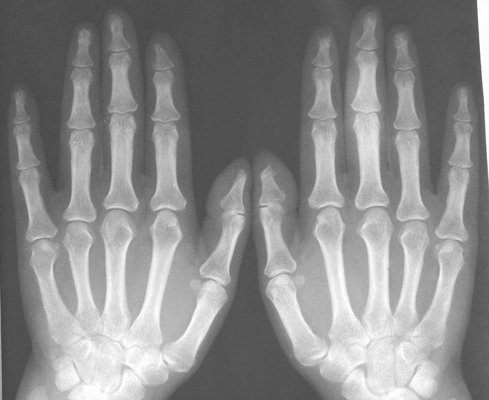 a kéz interfalangeális ízületeinek deformáló osteoarthrosis-ja)