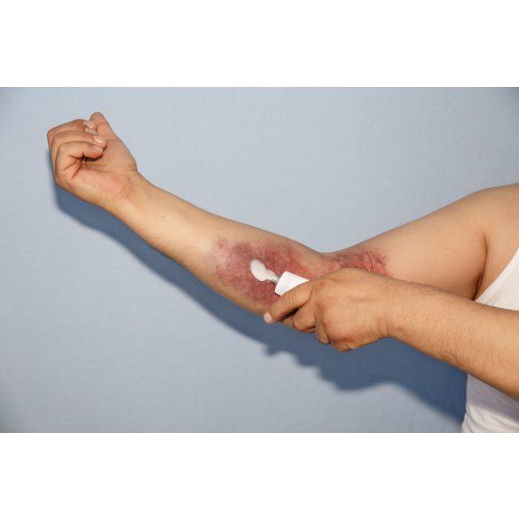 lapos láb és lábízületi gyulladás kezelése lábízület kenőcs kezelése