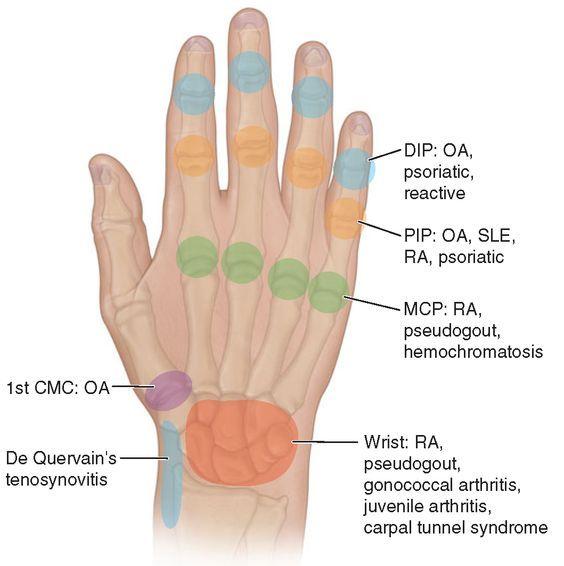 metacarpophalangealis arthrosis)