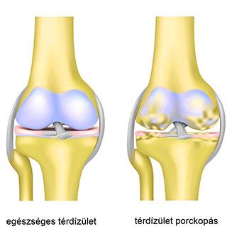 az artrózis gyógyul