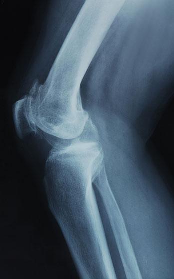 a térd ízületi röntgenfelvétele