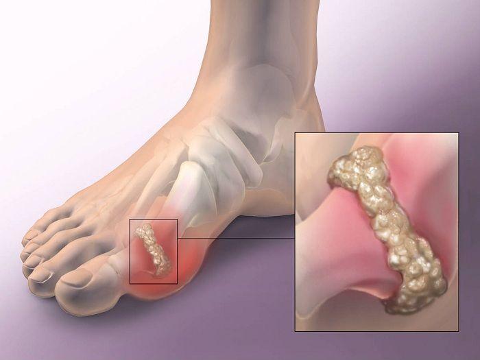 a lábfej kis lábujjának ízületi gyulladása)