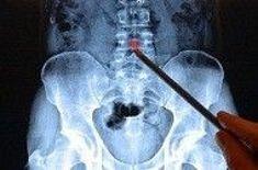 a coccyx arthrosis kezelése)