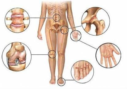 hogyan kell kezelni a lábujjak ízületeinek osteoarthrosisát)
