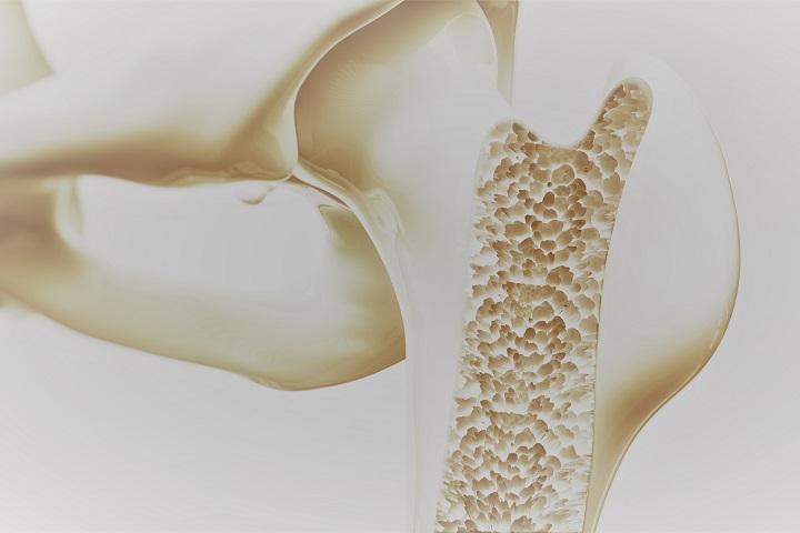 csípő-csontritkulás problémák