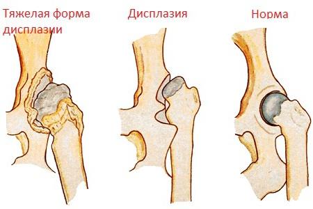 boka diszplázia kezelése)