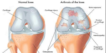 a bokaízület fokának artrózisa)