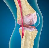 térdízület kezelése gonarthrosis artrosisban)