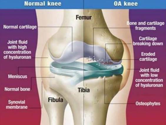 ízületi gyulladás a térdízület 3-4 fokos kezelése)