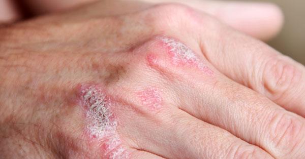 Psoriasis vulgaris | szeplaklovasudvar.hu