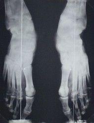 ízületi fájdalomtáncosok)