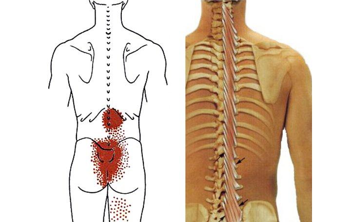 fájdalom az alsó hát nyakában az összes ízületben