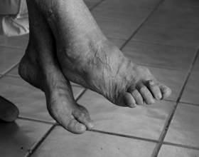 fájdalomcsillapító a bokaízület artrózisában bőrkiütés és ízületi fájdalom