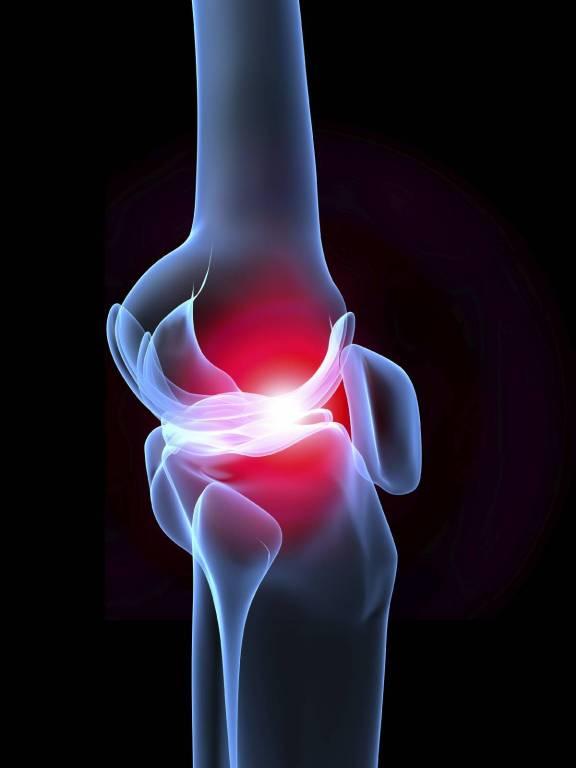 Szimpatika – Jó az ízületi gyulladásokra az erőspaprika