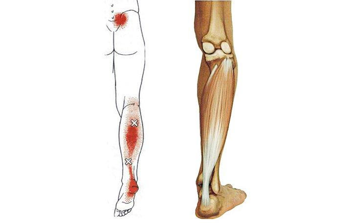 radikális artróziskezelés