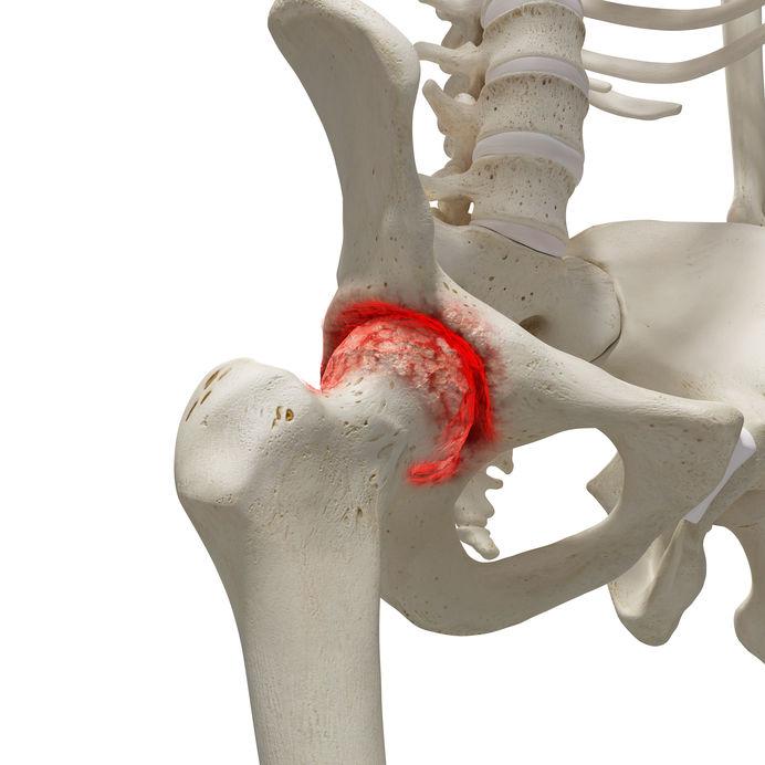 arthrosis coxarthrosis kezelés