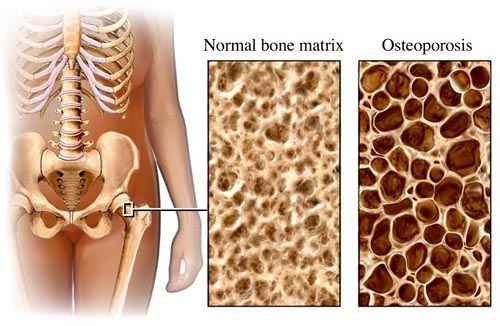 mellkasi gerinc kenőcsök és tabletták csontritkulása