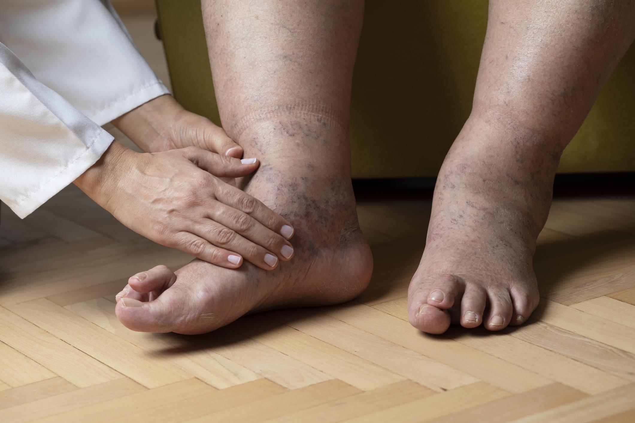 duzzadt lábát a boka