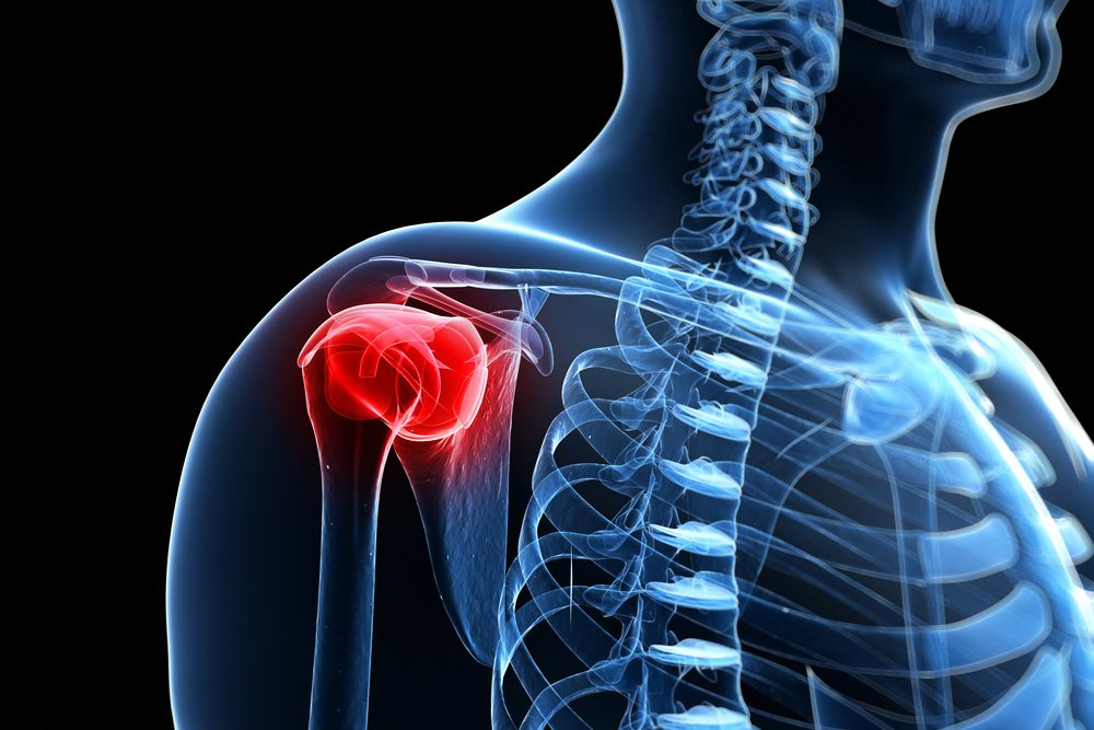 a nyaki és a vállízület fájdalmainak kezelése lézeres térdízületi kezelés áttekintés
