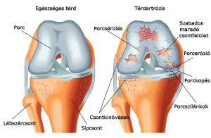 arthrosis kezelés dimexidum vélemények kötőszöveti betegség neve