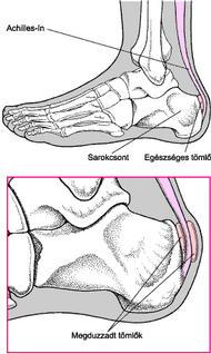 a lábak ízületei bokát fájnak
