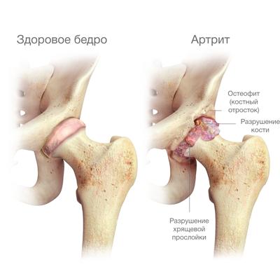 A csípő artrózis tünetei és kezelése, a betegség lényege - Frissítő