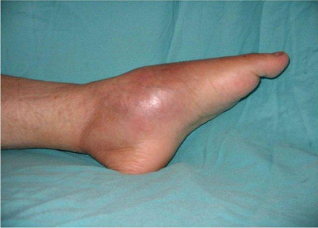 a lábak térdízületei fájnak)