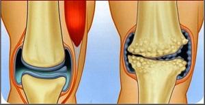 artrózis kezelési tanácsadás