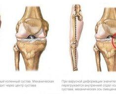 Hip osteoarthritis - Kezelés