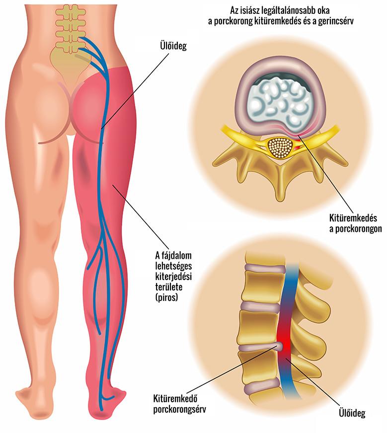 a csípőízület összeroppant és fáj)