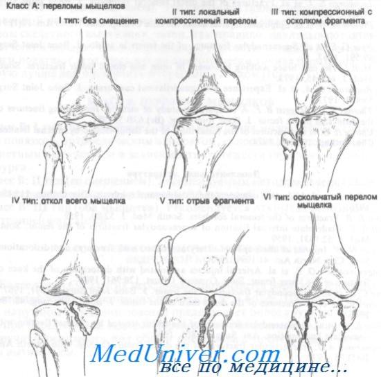 a térd condyle-törése erős fájdalomcsillapító kenőcsök ízületi fájdalmak kezelésére