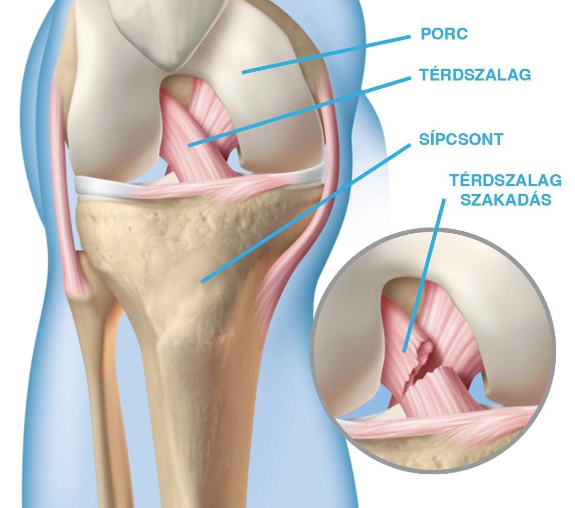 a térd keresztező szalagjai és tünetei és kezelése