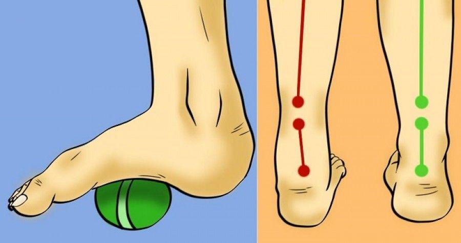 csípőfájás lapos lábakkal)